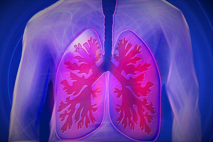 Jährlich mehrere hundert Tote durch Atemwegsinfektionen